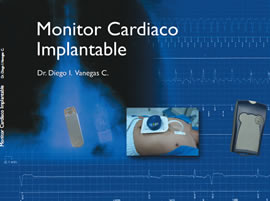 monitor-cardio-Implantable